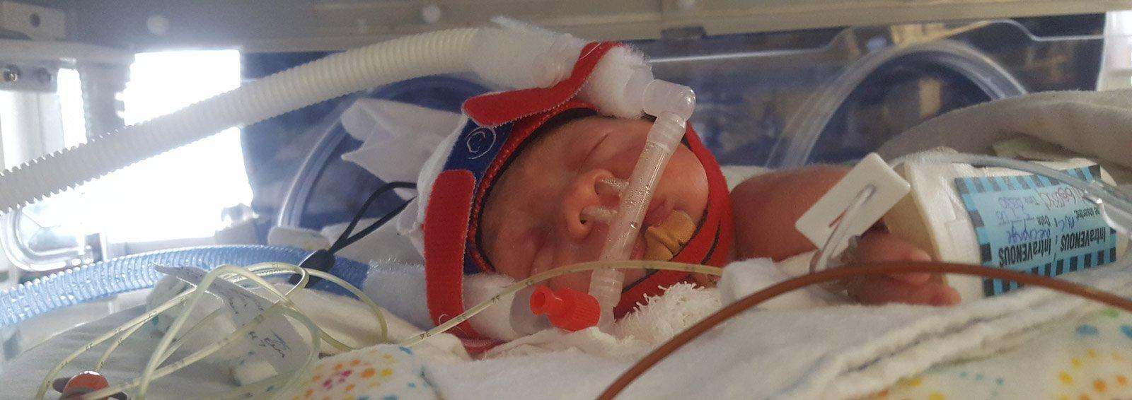 Having a Premature Baby